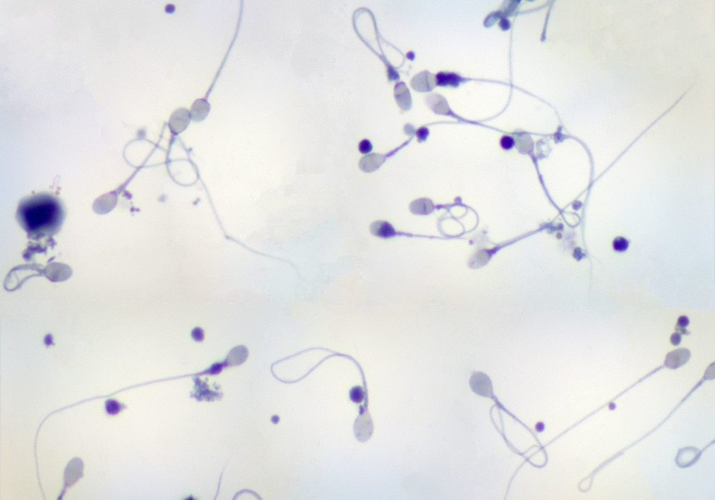 Sperm Donation Can Help You Build Your Family
