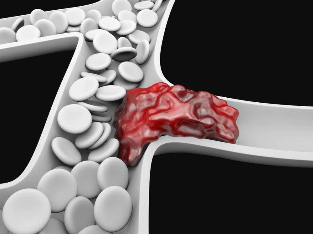 thrombophilias
