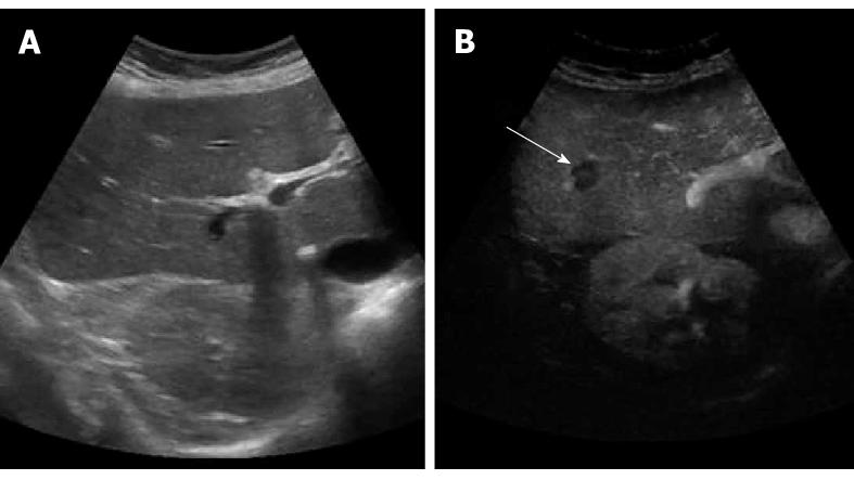 baseline ultrasound ivf